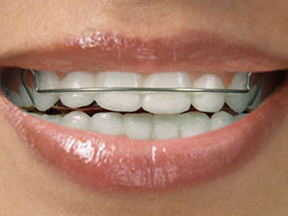 Orthodontic Terms, Appliances, PureSmile, Shanghai